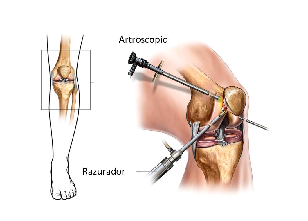 artroscopia de rodilla artroscopia de rodilla precio cirugia de artroscopia de rodilla cirugia de meniscos cirugia artroscopica