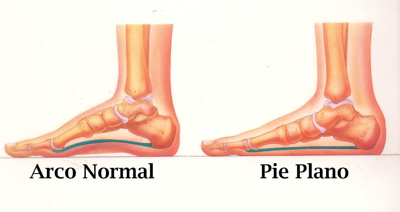 pie plano en niños ejercicios para pie plano dolor de pies en niños como quitar el pie plano pie plano tratamiento operación de pies planos