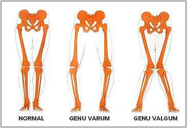 piernas arqueadas en bebes genu varo piernas de charro (incluir en texto solo si se encuentra que es término común no despectivo) genu varo en niños