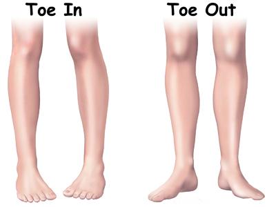 torsion tibial torsion tibial interna torsion tibial externa torsion tibial tratamiento