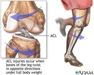 operacion de ligamento cruzado ruptura de ligamento cruzado lesión de ligamento cruzado anterior artroscopia de ligamento cruzado lesion ligamento cruzado posterior