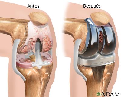 artroplastia total de rodilla operacion de rodilla protesis artroplastia de rodilla protesis total protesis de rodilla