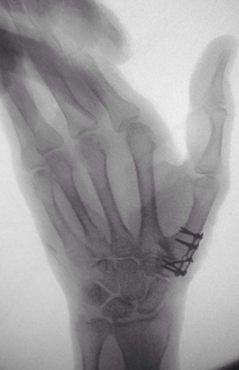 fractura cadera fractura muñeca primeros auxilios fractura que hacer en caso de fractura fractura de pierna fractura de pie